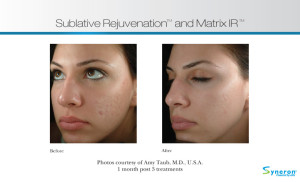 I Didn't see any changes after skin rejuvenation?